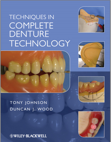 Techniques in Complete Denture Technology 1st Edition