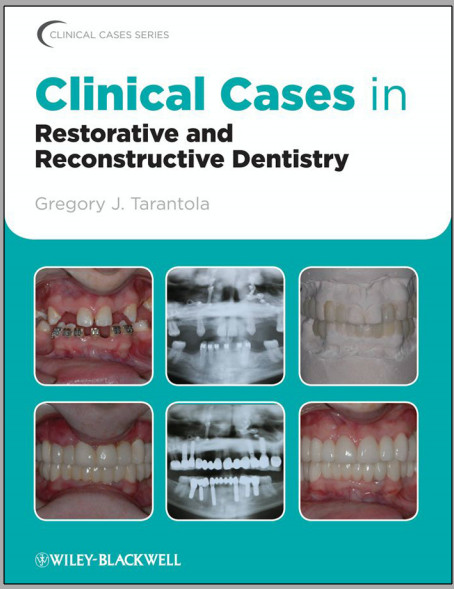 Clinical Cases in Restorative and Reconstructive Dentistry 1st Edition