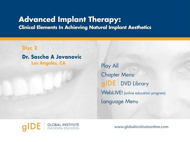 Advanced Implant Therapy: Clinical Elements in Achieving Natural Implant Aesthetics