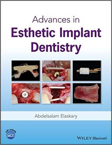 Advances in Esthetic Implant Dentistry 1st Edition PDF