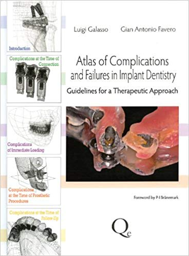 Atlas of Complications and Failures in Implant Dentistry: Guidelines for a Therapeutic Approach 1st Edition PDF