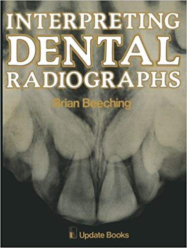 Interpreting Dental Radiographs Softcover reprint of the original 1st ed. 1981 Edition pdf