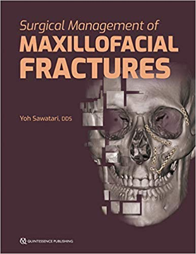 Surgical Management of Maxillofacial Fractures 1st Edition PDF