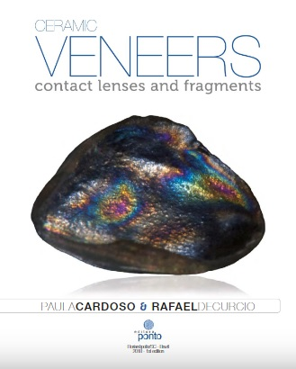 Ceramic veneers: contact lenses and fragments PDF