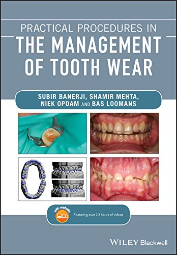 Practical Procedures in the Management of Tooth Wear PDF