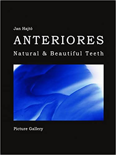 Anteriores: Natural & Beautiful Teeth: Picture Gallery PDF