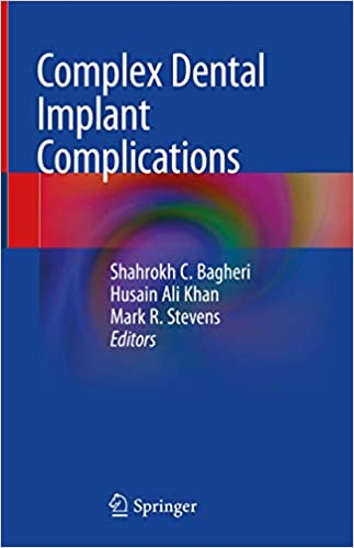 Complex Dental Implant Complications 1st ed. 2020 Edition PDF