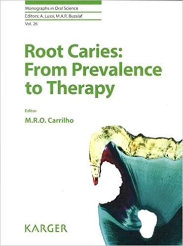 Root Caries: From Prevalence to Therapy 1st Edition PDF