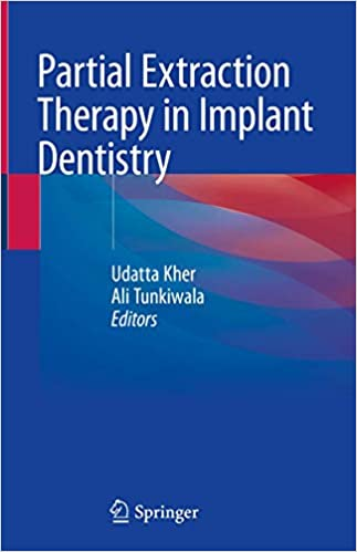 Partial Extraction Therapy in Implant Dentistry 1st ed. 2020 Edition PDF