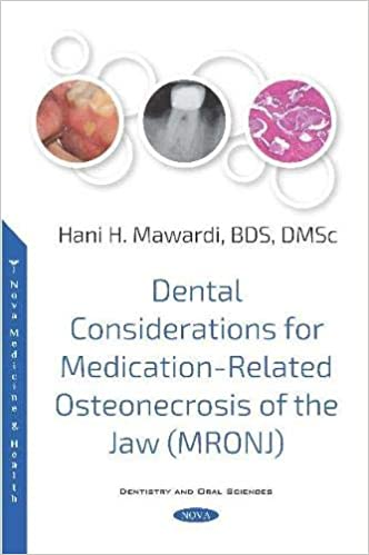 Dental Considerations for Medication-Related Osteonecrosis of the Jaw (MRONJ) 1st Edition PDF