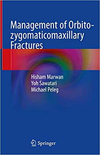Management of Orbito-zygomaticomaxillary Fractures 1st ed. 2020 Edition PDF