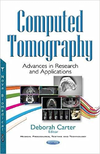 Computed Tomography: Advances in Research and Applications 1st Edition PDF