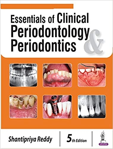 Essentials of Clinical Periodontology and Periodontics 5th Edition PDF